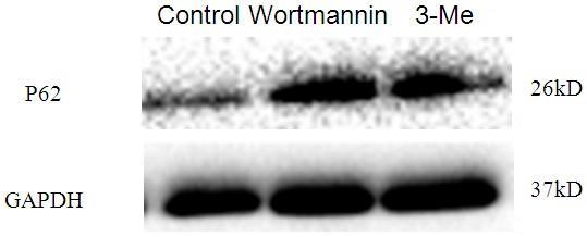 Wortmannin