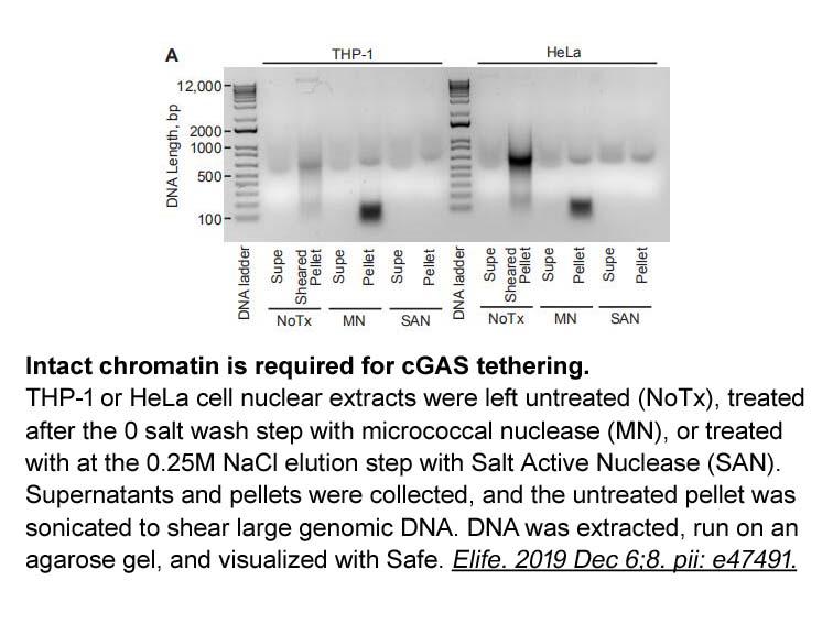 SYBR Safe DNA Gel Stain