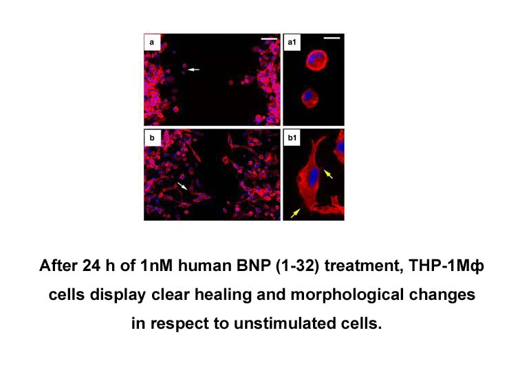 BNP (1-32), human
