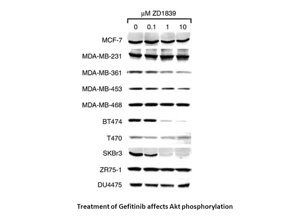 Gefitinib (ZD1839)
