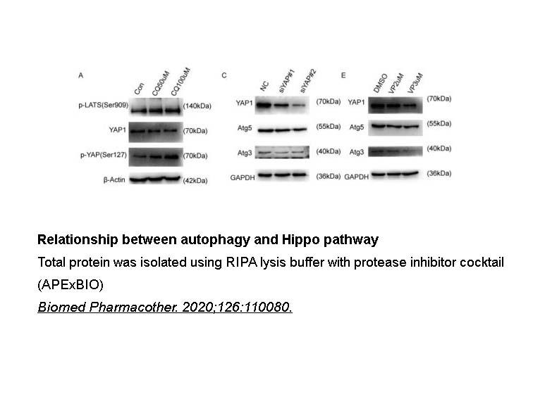Phosphatase Inhibitor Cocktail (2 Tubes, 100X)